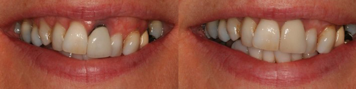 Crown Replacement A - Avenue Road Dental