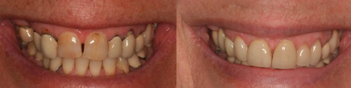 Crowns and Veneers - Avenue Road Dental