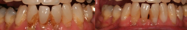 Gum Disease Treatment - Avenue Road Dental
