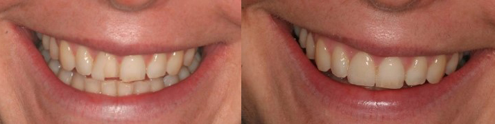 Veneers - Avenue Road Dental