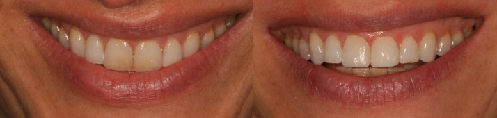 Composite Bonding Avenue Road IOW Dentist 4