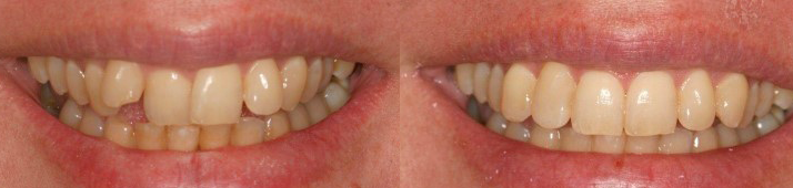 Tooth Straightening Service IOW